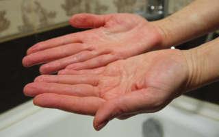 Что такое осмос и почему пальцы сморщиваются от воды?